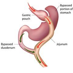 , Χειρουργική απώλεια βάρους – Θεραπεία νοσογόνου παχυσαρκίας, Δρ. Δαρδαμάνης Δημήτριος